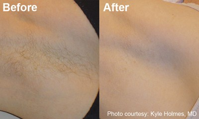 534678be7f89d5694576e7fc1f351122 Testimonials - Laser Hair Removal   Laser Hair Removal